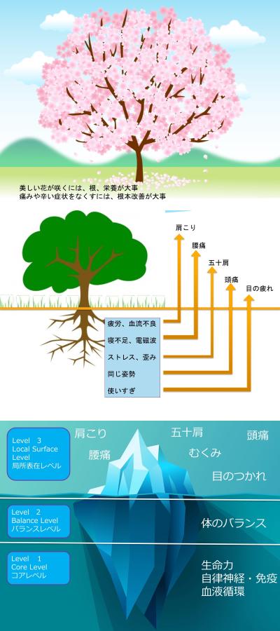 3つの局所レベル概念図